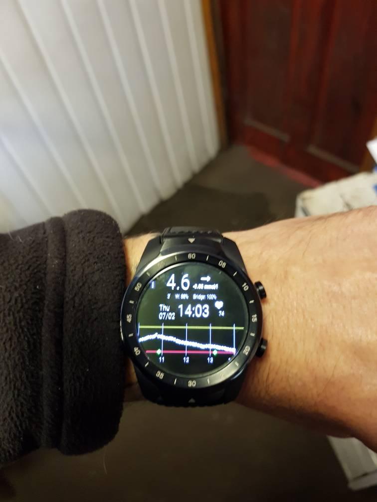 Smart Watch | Diabetes Forum • The Global Diabetes Community