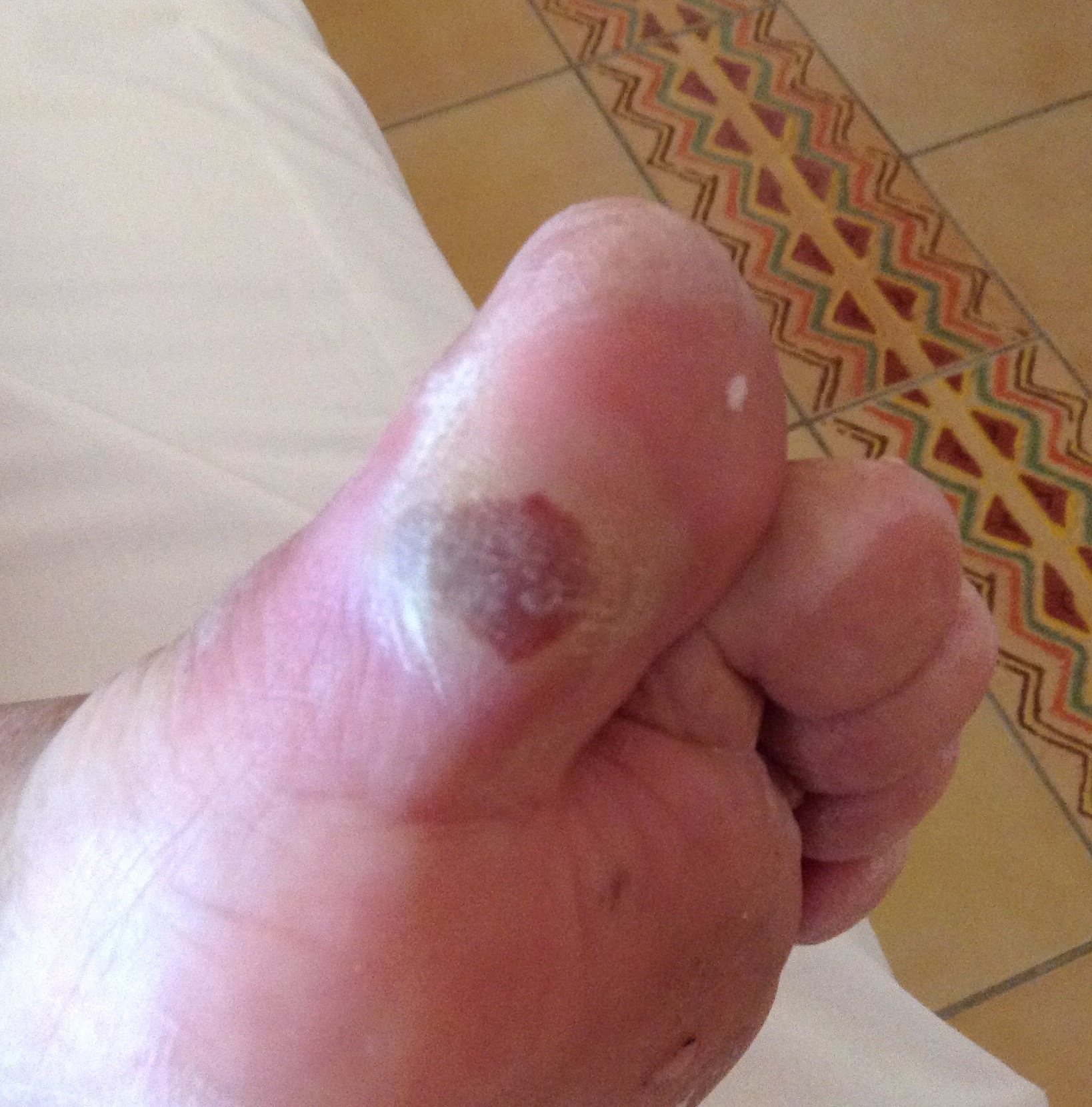 Foot problem on holiday....what to do... | Page 3 | Diabetes Forum ...