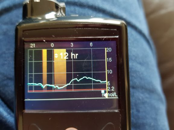 Insulin pump suspended 15.6.19.jpg