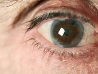 Cataracts are cloudy opacifications of the lens of the eye