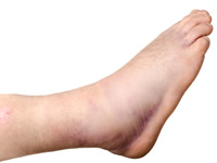 Edema commonly affects the ankles, legs, feet and wrists