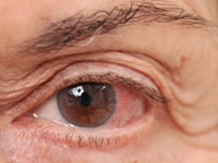 Glaucoma is caused by an excess amount of fluid pressing on the nerve at the back of the eye