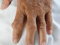 Gout is caused by high levels of uric acid