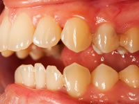 Gum disease is a lesser known complication of diabetes