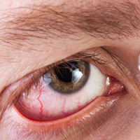 Retinal detachment affects 1 in 100,000 people each year