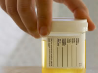 Proteinuria is where there is too much protein in the urine; a result of damage to the kidneys