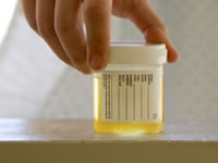 Ketonuria can be detected by performing a urine test