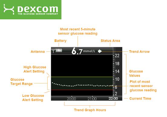 Dexcom - G4 Platinum CGM Review