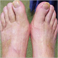 Newsletter Back To School Charcot Foot Cgm