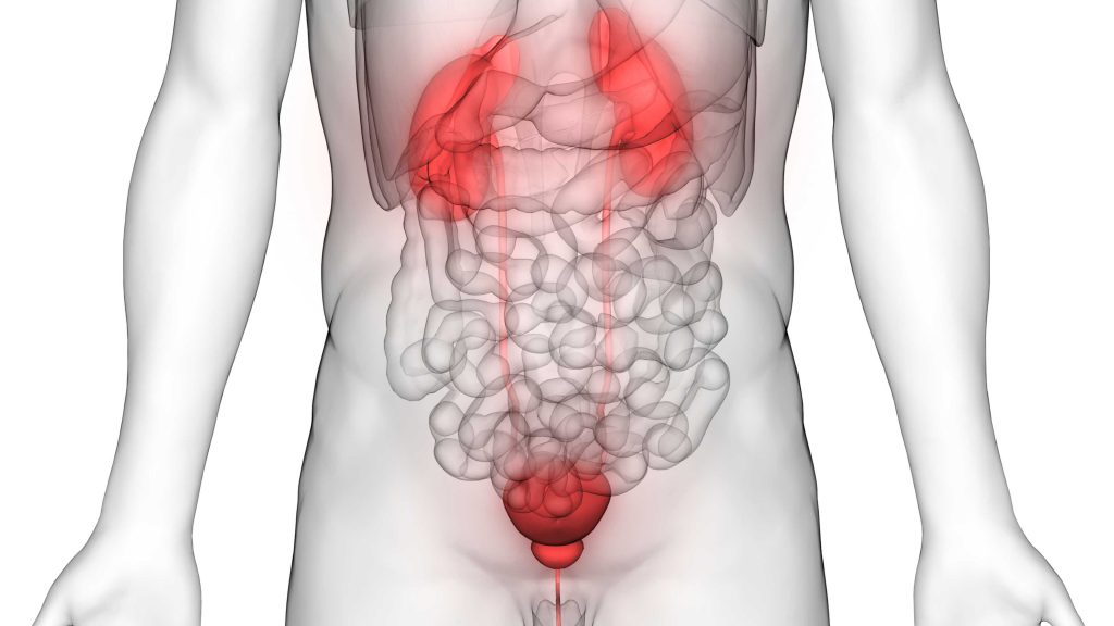 Diabetes And Bladder Cancer