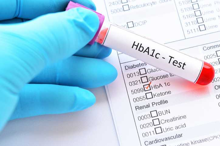 What is HbA1c? - Definitio, Units, Conversio, Testing & Control